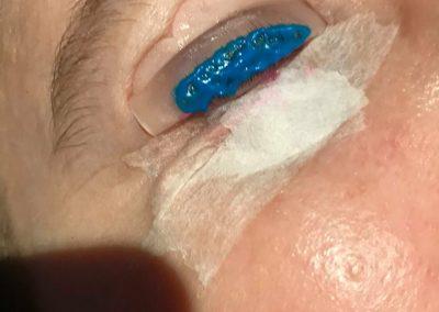 Blue setting lotion
