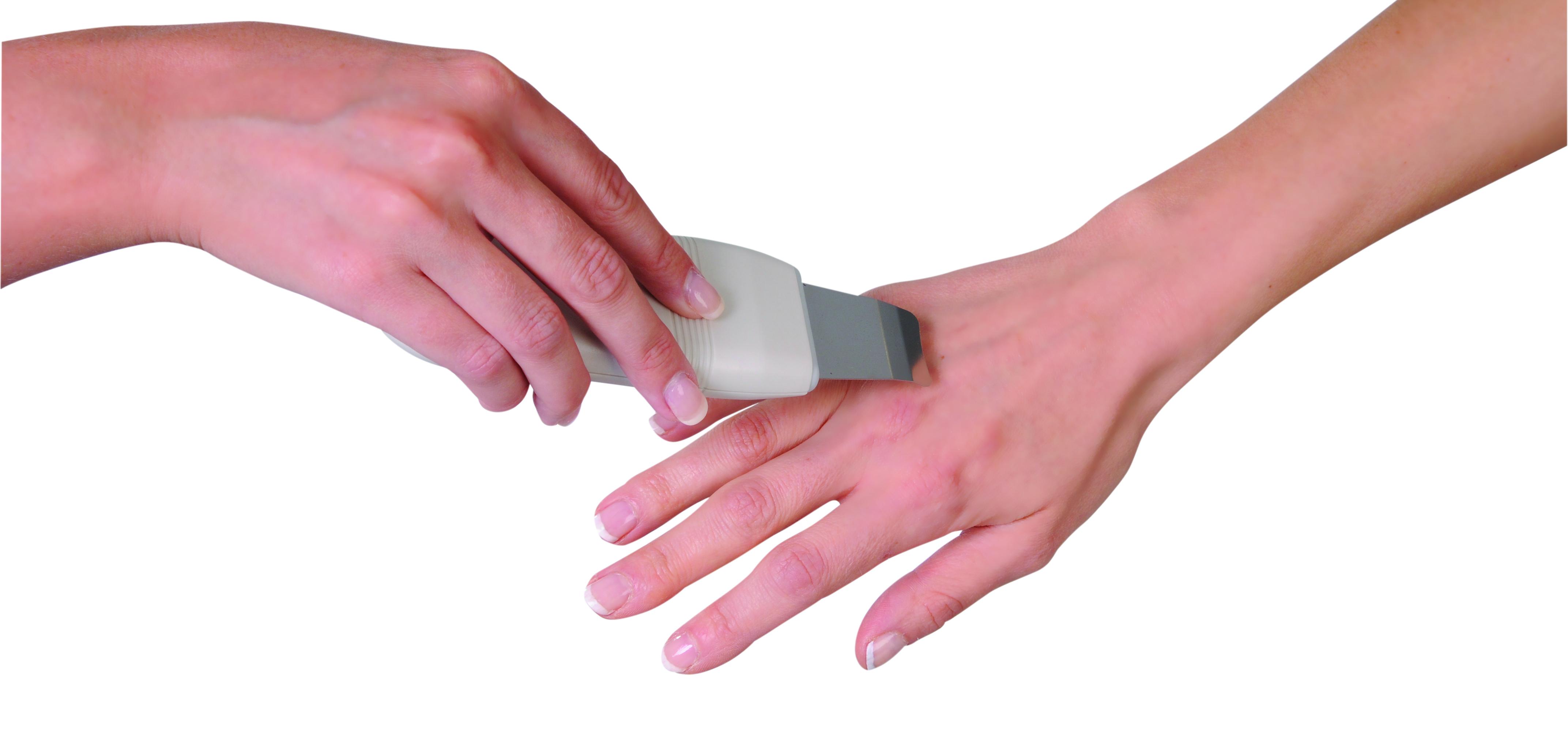 rsz_hand_treatment