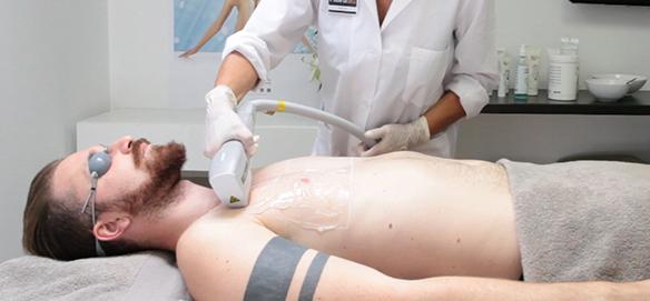 rsz_baldan-fibra-dfa-trattamento-epilazione-laser-uomo