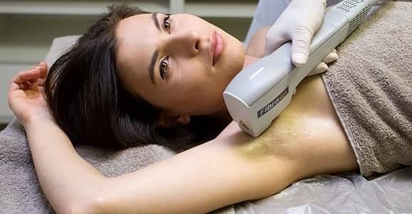 rsz_baldan-fibra-dfa-trattamento-epilazione-laser